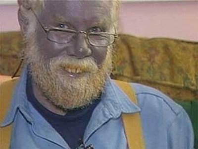 Paul Karason - Man with Blue Skin