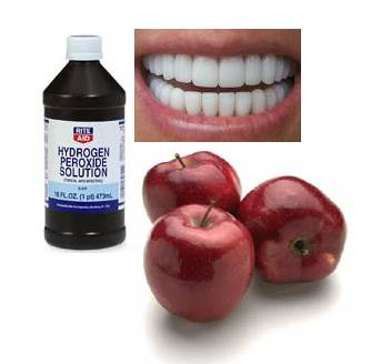 A Hydrogen Peroxide Solution Bottle, Pearly White Teeth and Apples