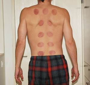 Acupuncture Marks on a Man's Back