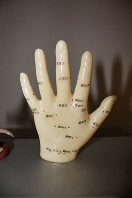 Plastic Hand Marked with Acupuncture Points