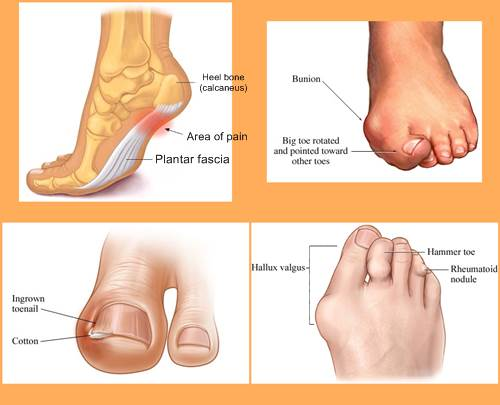 Foot Doctor's Chart Depicting Various Sore Feet Conditions